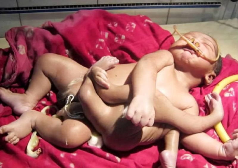 A Baby Born with 8 Limbs in India